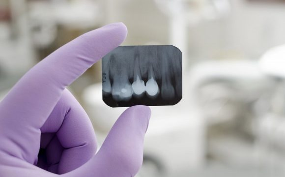 Безпечне рентгенологічне дослідження