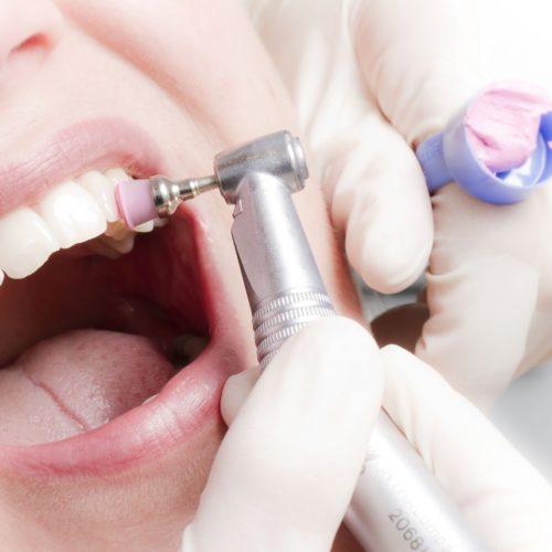 Професійне чищення зубів 499 гривень – завершено