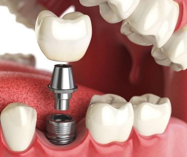 Правильная подготовка и установка зубных коронок