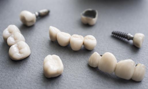 Что надо знать  о зубных коронках