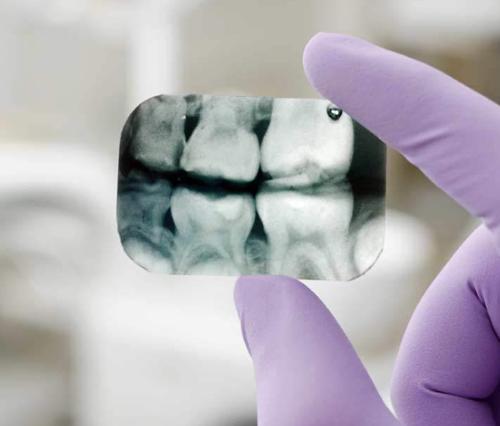 Портативная рентген диагностика