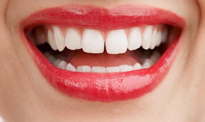 Диастема – не препятствие на пути к улыбке