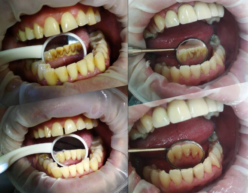 Профессиональная чистка полости рта