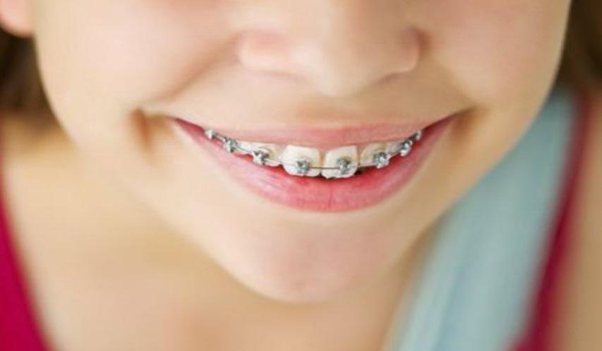 Уход за зубами с брекет-системой