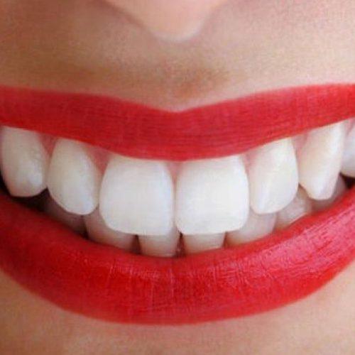 Что важно знать об отбеливании зубов