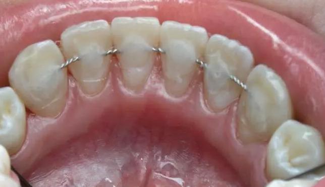 Применение метода «шинирования» для подвижных зубов