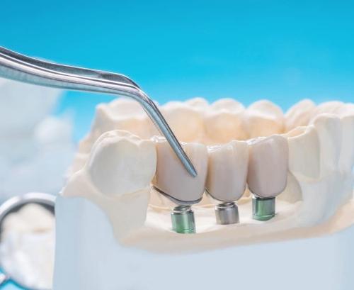 Когда применяется мини-имплантация зубов